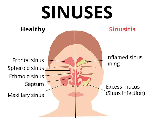 Sinus Infection and Diabetes